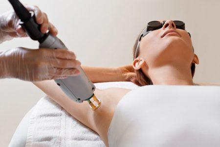 épilation définitive au laser avis pour se débarrasser des poils
