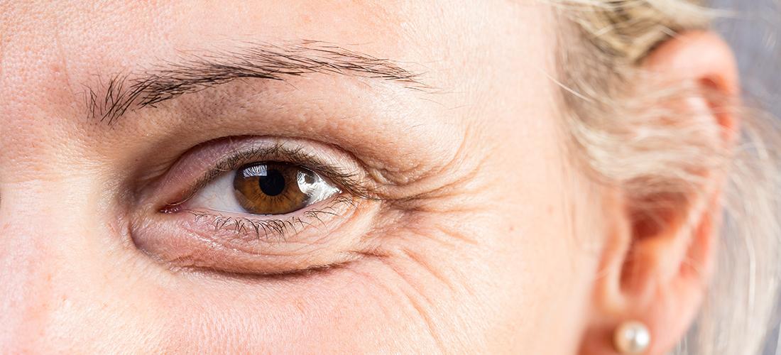 Alles wat je moet weten over het behandelen (en voorkomen) van rimpels onder de ogen